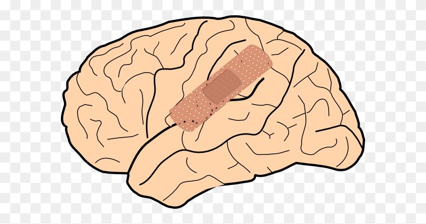 Brain Injury Clip Art - Head Injury Clipart