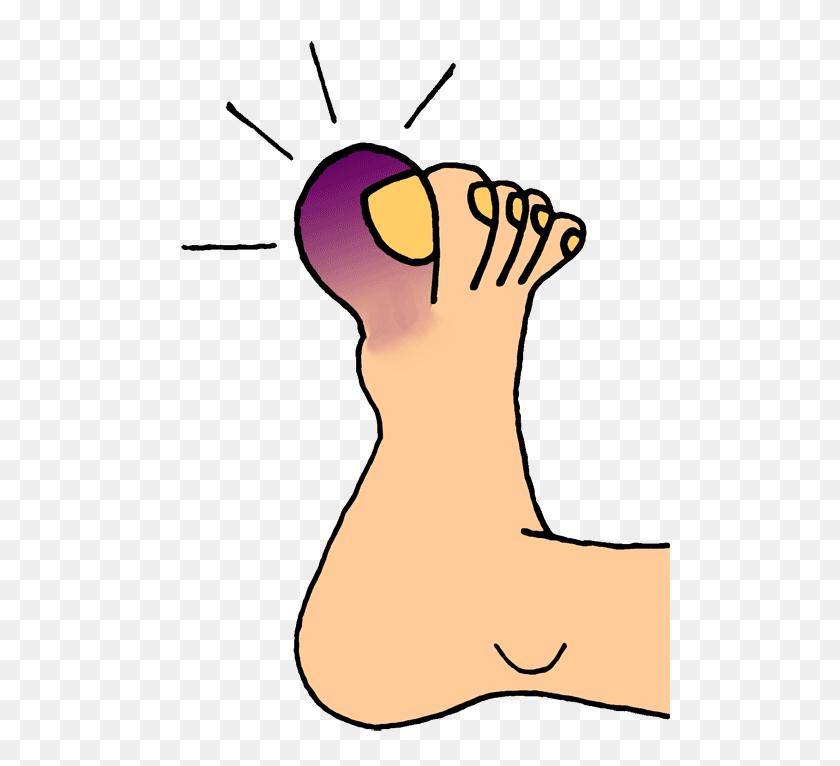 500x706 Inflammation Clipart - Arthritis Clipart
