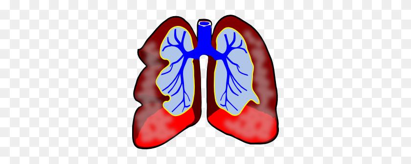 300x275 Mesothelioma Clip Art - Lung Cancer Clipart